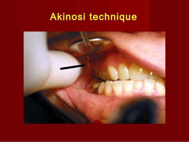 Techniques of Local Anesthesia