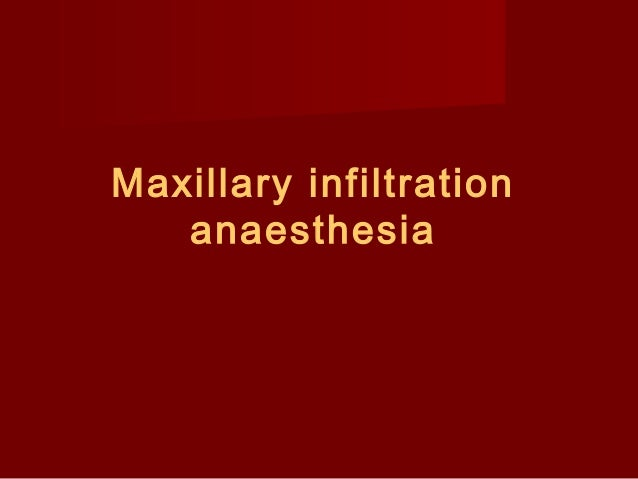 Maxillary infiltration anaesthesia