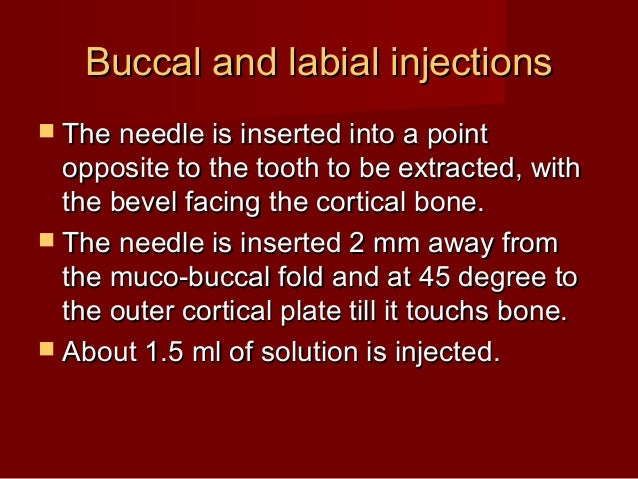 Buccal and labial injections  The needle is inserted into a point  opposite to the tooth to be extracted, with the bevel ...