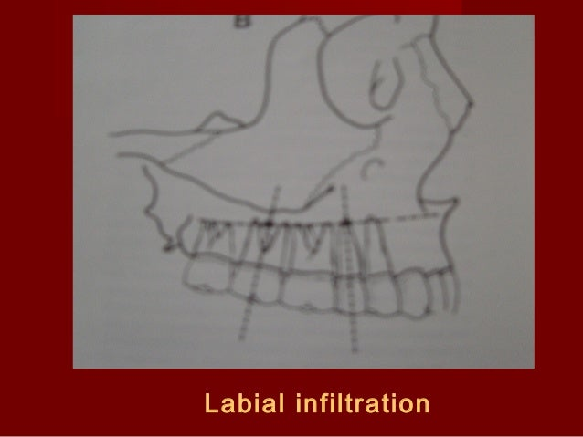 Labial infiltration