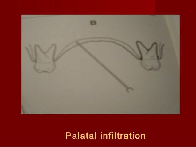 Palatal infiltration
