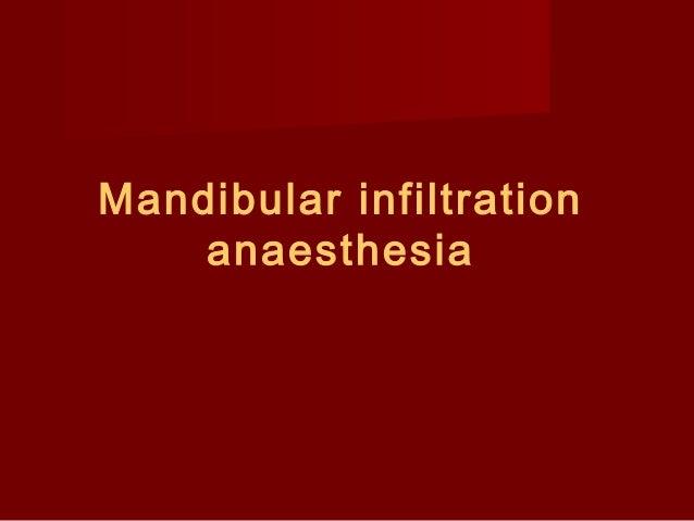 Mandibular infiltration anaesthesia