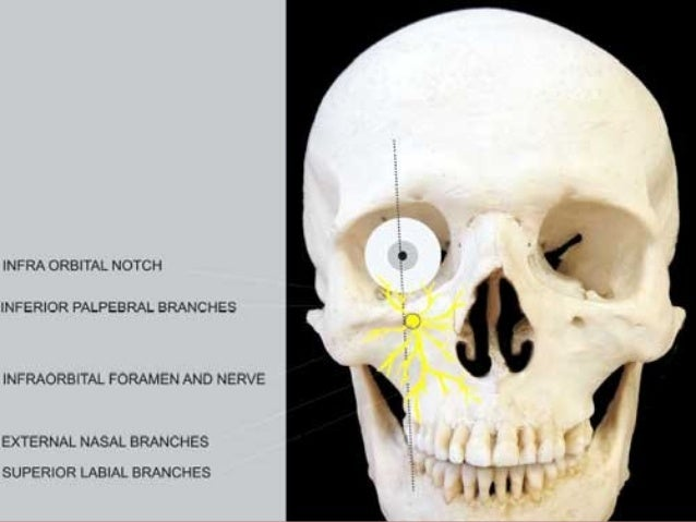 Technique Needle is inserted over the apices of the second molar, little distance away from the bone to clear the zygomati...