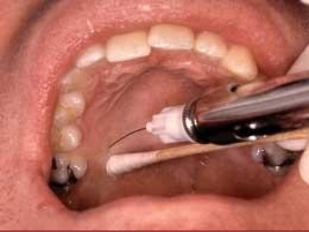The index finger is rotated lingually to occupy the retromolar triangle, and the fingernail faces the lingual side 5. With...