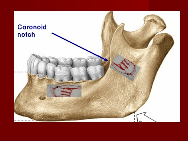 Aim  To anesthetize the inferior alveolar, mental  nerve, incisive, lingual, mylohyoid, auriculotemporal and buccal nerve...