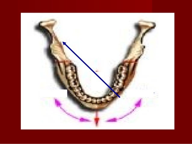 Point of needle insertion Target area: The lateral aspect of the neck of the condyle 1. The patient is asked to extend the...