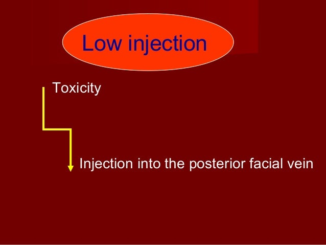 Point of needle insertion Target area: Area between the vertical ramus and maxillary tuberosity 1. The patient is asked to...