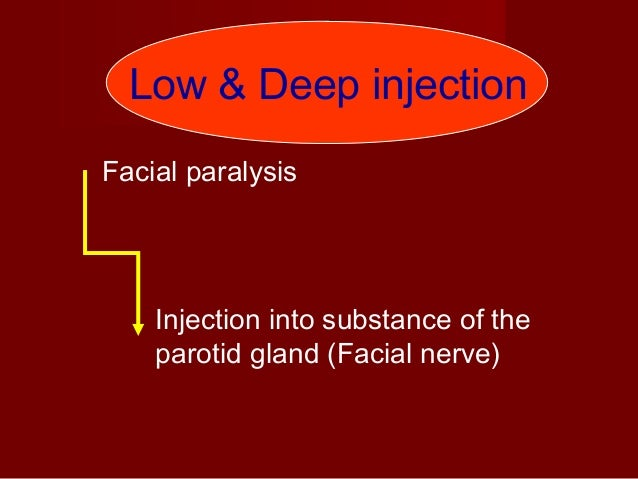 The needle is positioned at the level of the maxillary marginal gingiva with the barrel parallel to the maxillary occlusal...