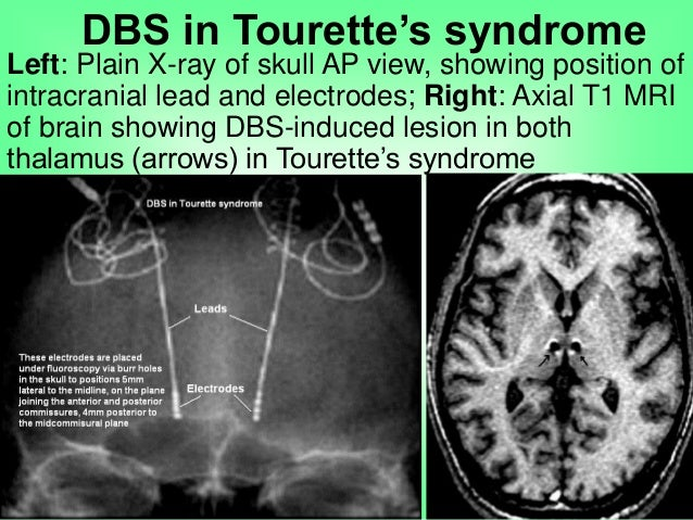 the clinical description of the inherited brain disorder tourette syndrome Tourette syndrome is a complex neuropsychiatric disorder of juvenile onset,   this article discusses the aetiology of the syndrome, and examines its clinical  features and  newer therapies, such as deep brain stimulation, offer tantalising   american journal of medical genetics part b neuropsychiatric.