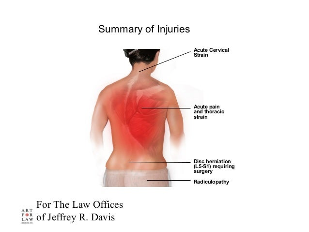 For The Law Offices of Jeffrey R. Davis Acute pain and thoracic strain Summary of Injuries Acute Cervical Strain Disc hern...