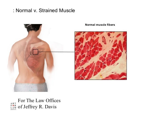 For The Law Offices of Jeffrey R. Davis : Normal v. Strained Muscle Normal muscle fibers