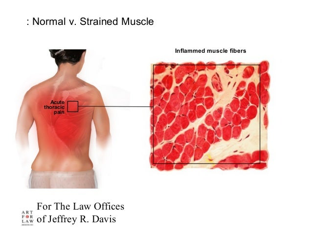 For The Law Offices of Jeffrey R. Davis Inflammed muscle fibers : Normal v. Strained Muscle Acute thoracic pain