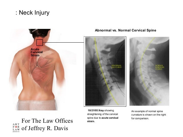 For The Law Offices of Jeffrey R. Davis : Neck Injury 10/21/05 Xray showing straightening of the cervical spine due to acu...