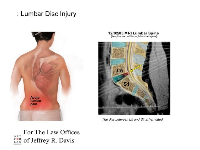 For The Law Offices of Jeffrey R. Davis L5 S1 Acute lumbar pain : Lumbar Disc Injury The disc between L5 and S1 is herniat...