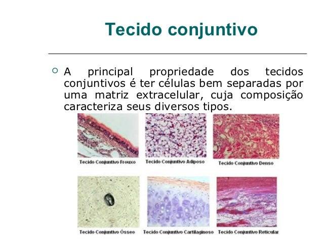 Tecido conjuntivo   A   principal   propriedade    dos  tecidos    conjuntivos é ter células bem separadas por    uma mat...