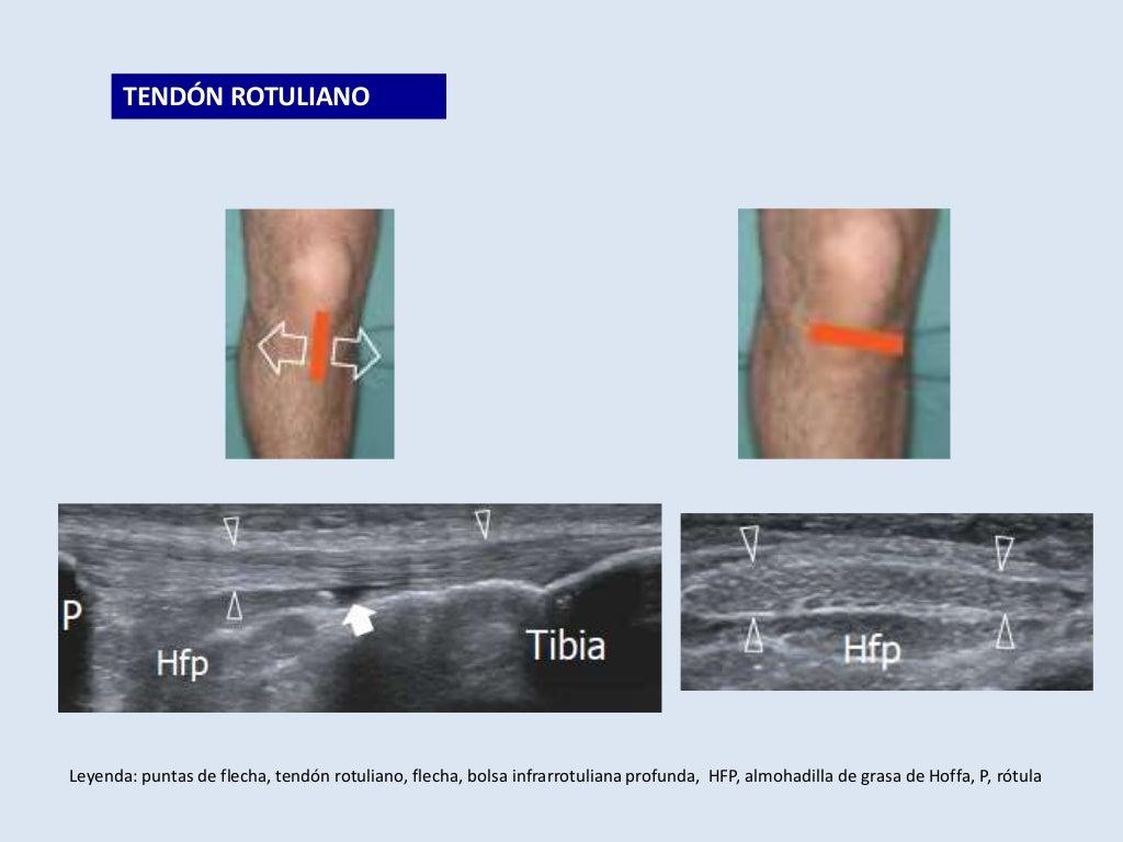 Tecnica eco rodilla