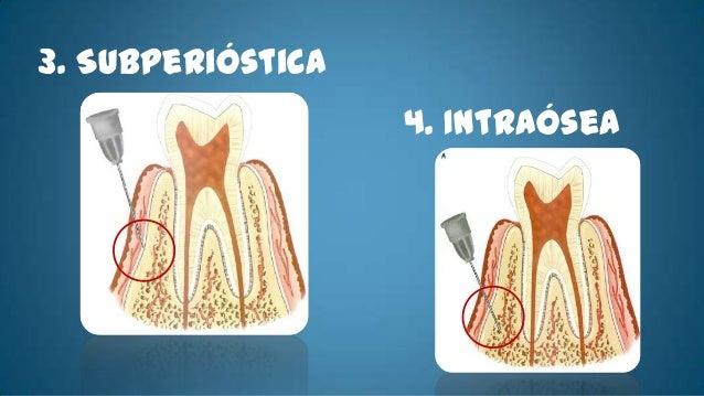 • Técnica Básica       El orifico esta situado aplomo, respecto a la raíz palatina del2do molar, en un punto equidistante ...