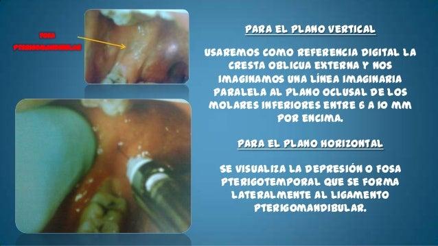 • Nervio:   – Bucal• Áreas anestesiadas:-   Encía y Mucosa vestibular de la    región retromolar y molares    inferiores.-...