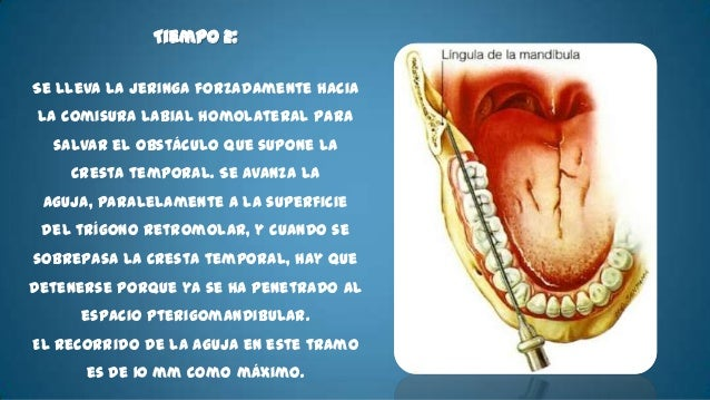 • Indicaciones:   - Tratamientos periodontales como curetajes.   - Cirugía sobre el vestíbulo, sobre el labio inferior y l...