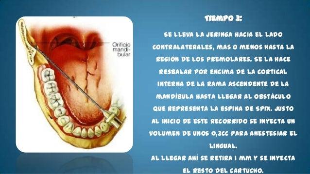 • Nervio:    –   Alveolar inferior    –   Lingual    –   Bucal    –   Milohiodeo• Técnica Básica        La aguja se coloca...