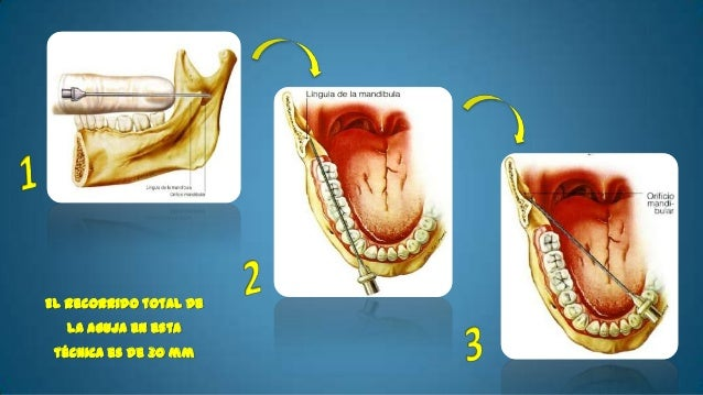 • Indicaciones:   - Cuando el paciente sufre de trismos o     anquilosis temporomandibular• Complicaciones   - Trismos y p...