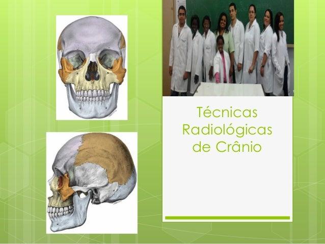 TécnicasRadiológicas de Crânio