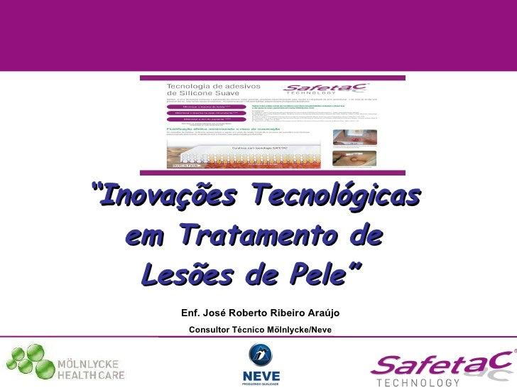 """"""" Inovações Tecnológicas em Tratamento de Lesões de Pele""""   Enf. José Roberto Ribeiro Araújo Consultor Técnico Mölnlycke/N..."""