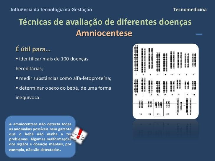 Influência da tecnologia na Gestação             Tecnomedicina       Técnicas de avaliação de diferentes doenças          ...