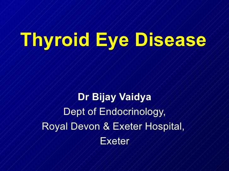 Thyroid Eye Disease Dr Bijay Vaidya Dept of Endocrinology, Royal Devon & Exeter Hospital,  Exeter