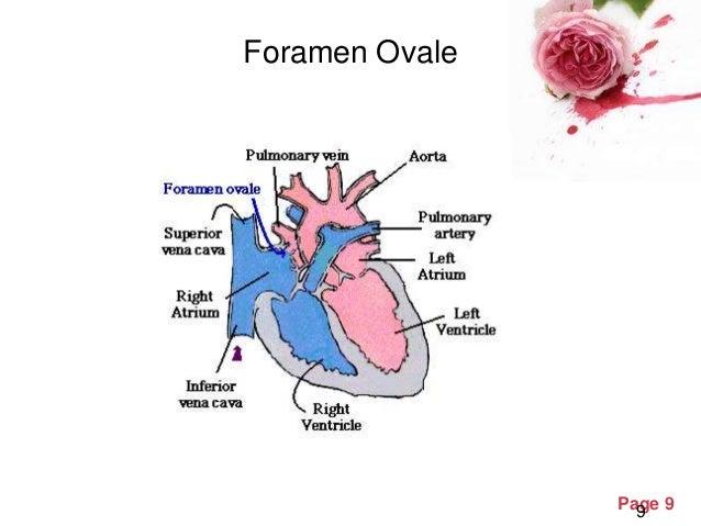 Fetal Circulation Diagram Finest Fetal Circulation Diagram With