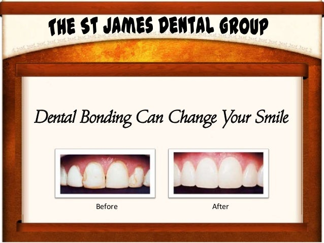 Dental Bonding Can Change Your Smile Before After