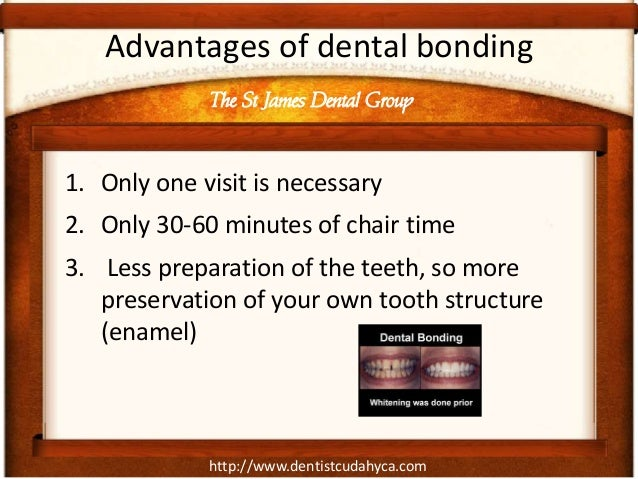 http://www.dentistcudahyca.com Advantages of dental bonding 1. Only one visit is necessary 2. Only 30-60 minutes of chair ...