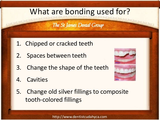 http://www.dentistcudahyca.com What are bonding used for? 1. Chipped or cracked teeth 2. Spaces between teeth 3. Change th...