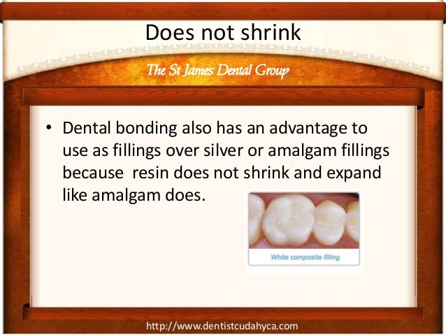 http://www.dentistcudahyca.com Does not shrink • Dental bonding also has an advantage to use as fillings over silver or am...