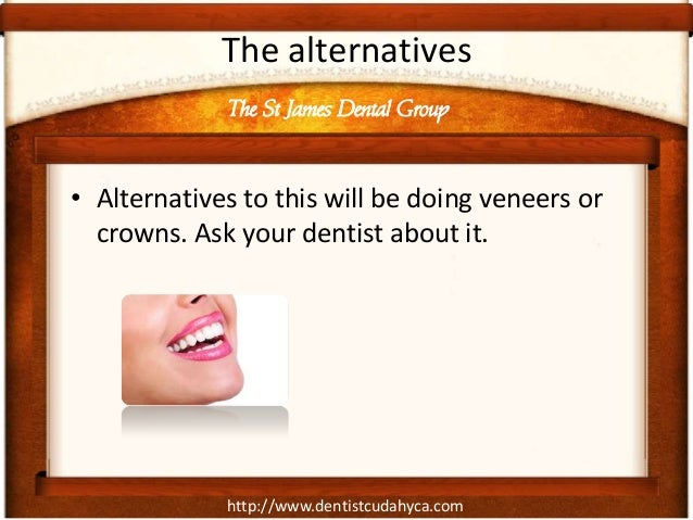 http://www.dentistcudahyca.com The alternatives • Alternatives to this will be doing veneers or crowns. Ask your dentist a...
