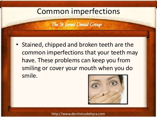 http://www.dentistcudahyca.com Common imperfections • Stained, chipped and broken teeth are the common imperfections that ...