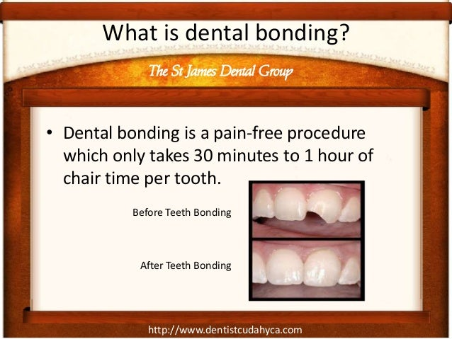 http://www.dentistcudahyca.com What is dental bonding? • Dental bonding is a pain-free procedure which only takes 30 minut...