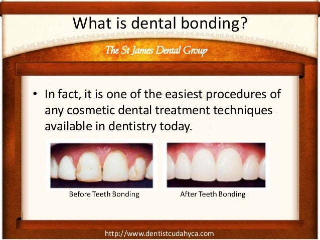 http://www.dentistcudahyca.com What is dental bonding? • In fact, it is one of the easiest procedures of any cosmetic dent...