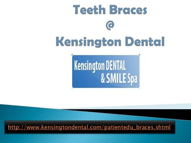 Teeth Braces @Kensington Dental<br />http://www.kensingtondental.com/patientedu_braces.shtml<br />