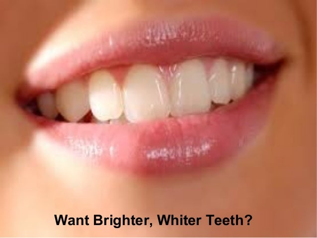 Want Brighter, Whiter Teeth?