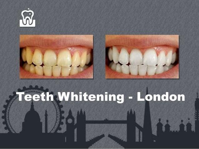 Teeth Whitening - London