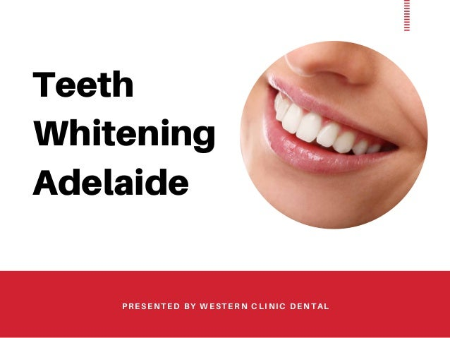 Quick Tips Regarding Teeth Whitening Adelaide