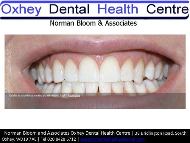 Teeth whitening hertfordshire Slide 2