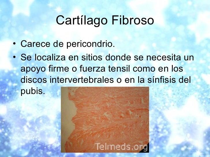 Cartílago Fibroso <ul><li>Carece de pericondrio. </li></ul><ul><li>Se localiza en sitios donde se necesita un apoyo firme ...