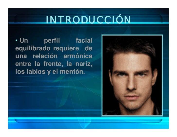 INTRODUCCIÓN • Un      perfil    facial equilibrado requiere de una relación armónica entre la frente, la nariz, los labio...