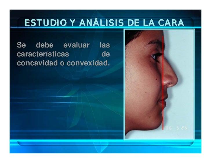 ESTUDIO Y ANÁLISIS DE LA CARA  Se debe evaluar las características       de concavidad o convexidad.