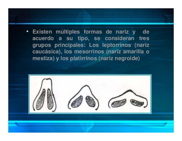 • Existen múltiples formas de nariz y         de   acuerdo a su tipo, se consideran tres   grupos principales: Los leptorr...
