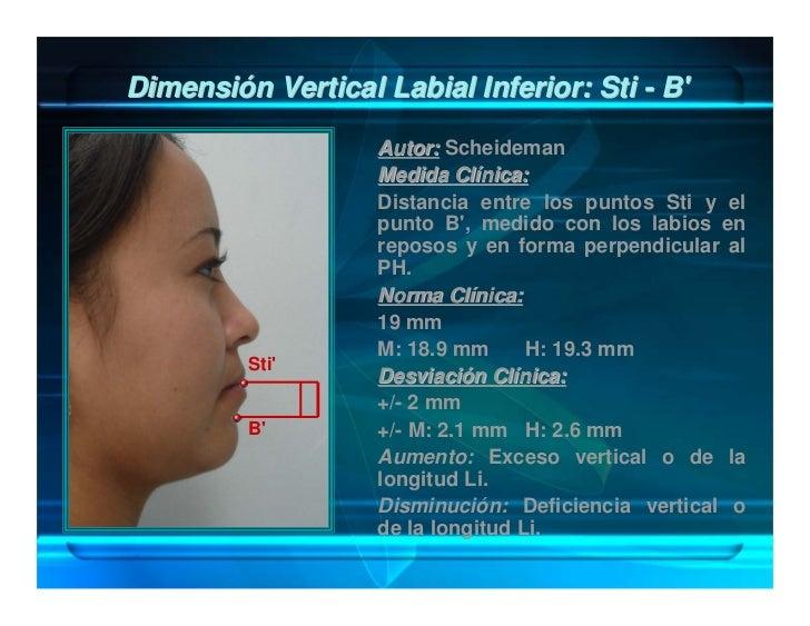 Relación de Proporción en el tercio Facial        Inferior: SN-Stm / Stm-Me'                      Autor: Vitruvio, Fish y ...