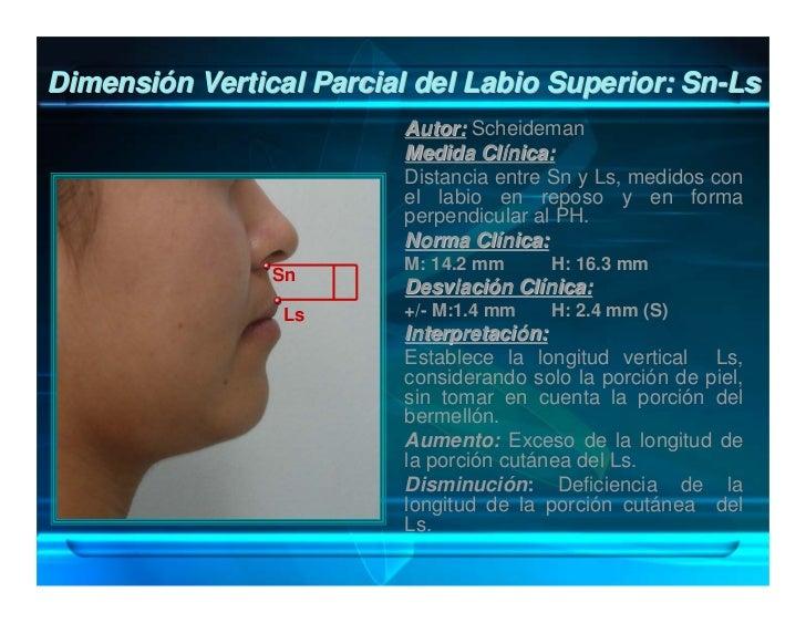 Relación de Proporción del Tercio Inferior Facial:                  Sn-Li / Li-Me'                         Autor: Scheidem...