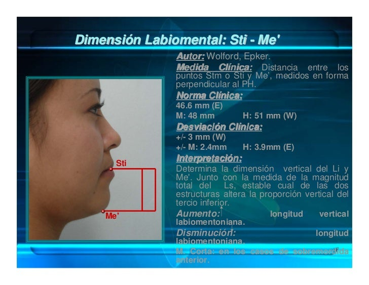 Distancia Interlabial (En reposo): Sts-Sti                      Autor: Fish y Epker.                      Medida Clínica: ...